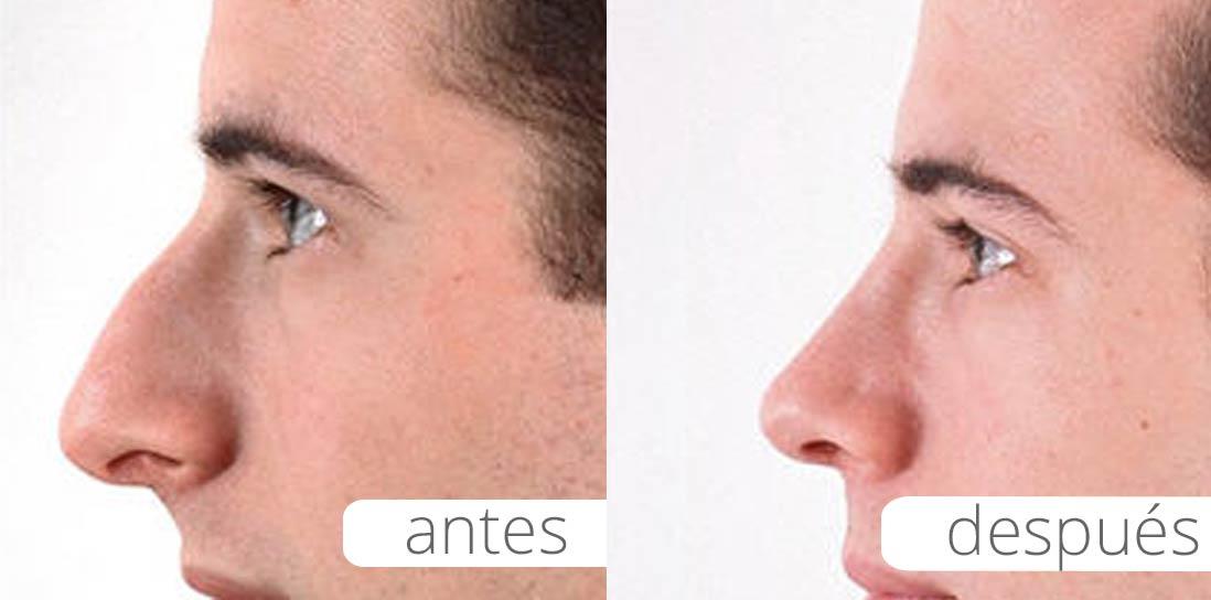 Rinoplastia | Clínica Canaria de Medicina y Cirugía Estética